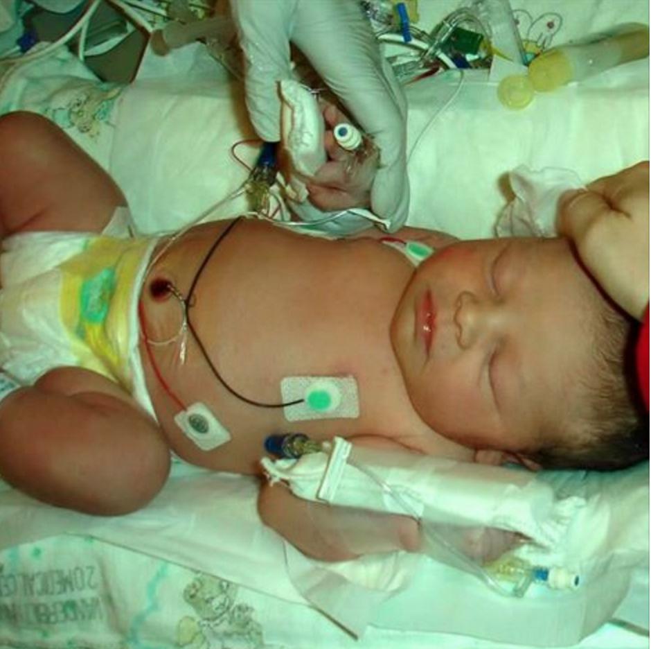 Norah in incubator