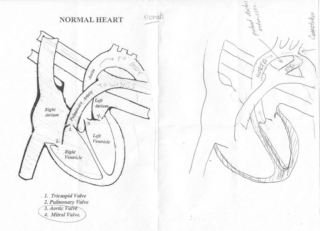 norah_heart_diagram